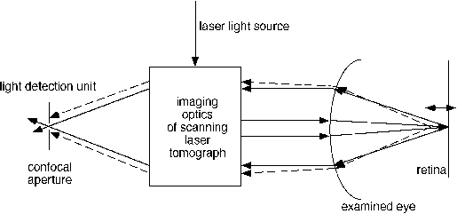 Three-Dimensional Retinal Imaging