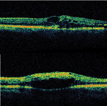 Evaluation And Management Of Retinal Vein Occlusion
