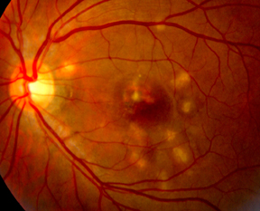 Review Of Ophthalmology  Presumed Ocular Histoplasmosis