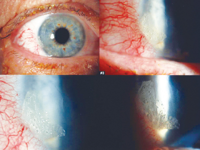 Moving Toward the Ideal Ophthalmic Sealant