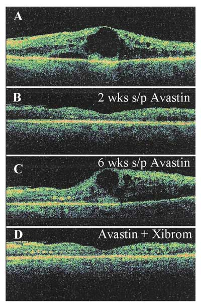Nsaids In Treatment Of Retinal Disorders