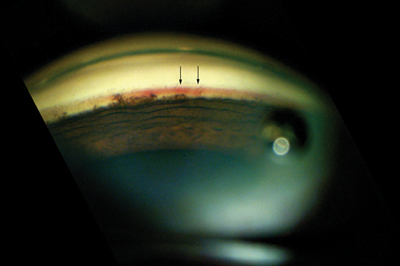 Another Role for Avastin? Neovascular Glaucoma