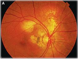 Tuberculosis Retina