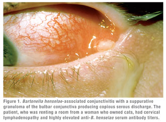 Spotting Bartonella-Associated Uveitis