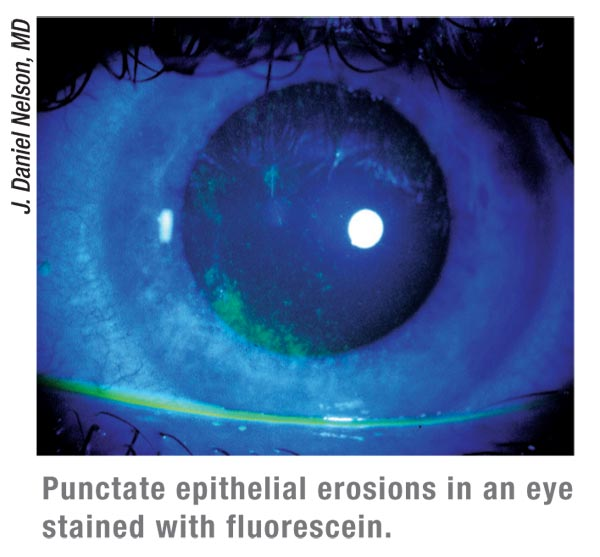 Punctate epithelial keratitis