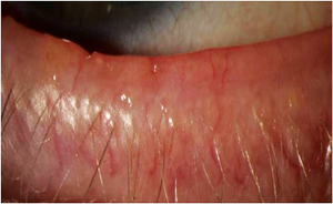 New Blepharitis Treatments - Review of Optometry