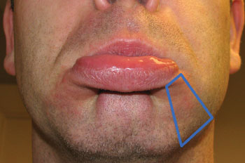 Cosmetic Use Of Botulinum Toxin