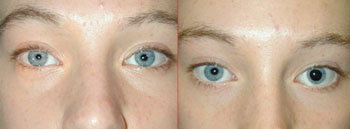 How to Spot and Treat Dangerous Ptosis