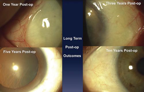 A Cornea-Friendly Pterygium Procedure