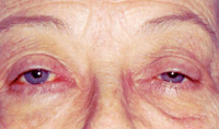 How to Spot Dangerous Ptosis—The Sequel
