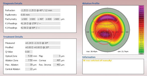 Topography Guided Ablation Pros And Cons