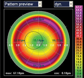Lasik Eye Center >> Topography-guided Ablation: Pros and Cons