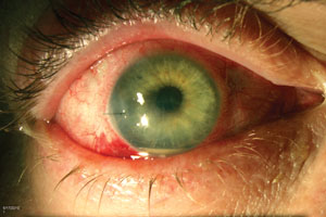 Figure 4  Since contemporary endophthalmitis rates after cataract    Intravitreal Injection Endophthalmitis
