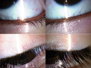 eyelids on permethrin