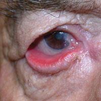 lower eyelid malposition evaluation and treatment