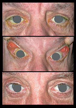 How do they do cataract surgery