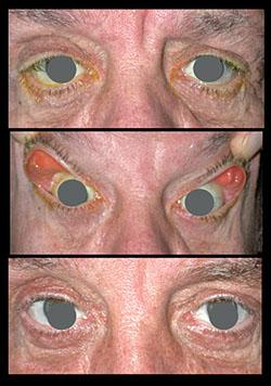 Cataract Surgery The Oculoplastic Factor