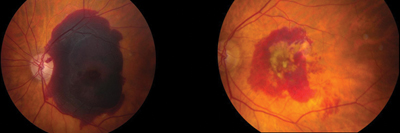 Left Preoperative Image Of Submacular Hemorrhage From Choroidal Neovascularization Secondary To Age Related Macular Degeneration