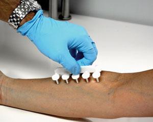 A New Take on Allergy Diagnostics & Treatment