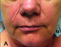 Putting Injectable Facial Fillers to Their Best Use