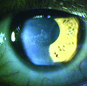 When Corneal Cross-Linking Goes Bad