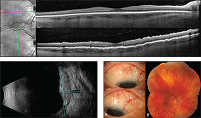 Optical Coherence Tomography Of The Right Eye Showing Internal Limiting Membrane Irregularity With Retinal Folds On Vertical Orientation
