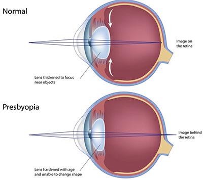 accommodation eye