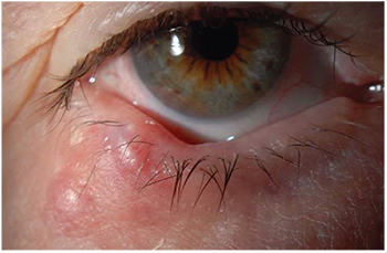 Chalazion and Hordeolum Stye  Eye Disorders  Merck