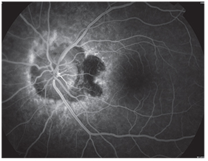 Ultra Widefield Retinal Imaging In Uveitis