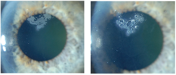 Lasik Eye Center >> How to Eliminate Epithelial Ingrowth