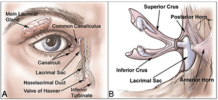 A Practical Approach to Canalicular Lacerations