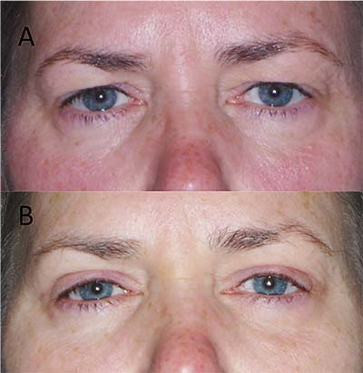 Options for Small- Incision Brow Lifts