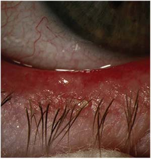 Blepharitis: Know What to Look For