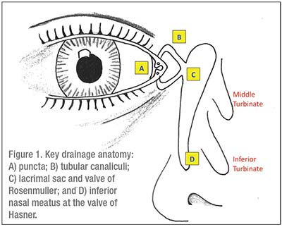 Lacrimal Obstruction: What Now?Inferior Meatus Nasolacrimal Duct