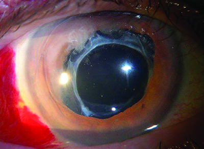 4bdcfe8ae247 Figure 3. IOL with capsular tension ring subluxed into the anterior chamber  following blunt trauma.