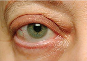 Thyroid Eye Disease Its Causes And Diagnosis