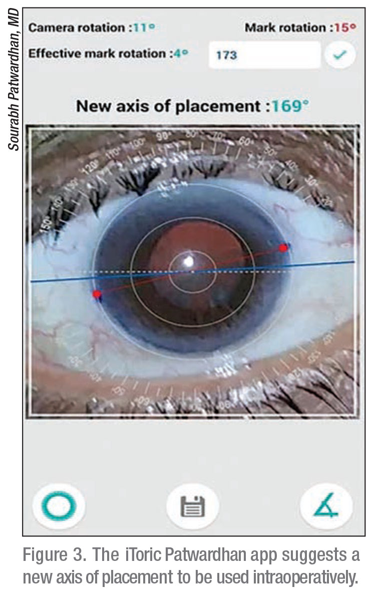 Smartphone Apps for Cataract Surgery