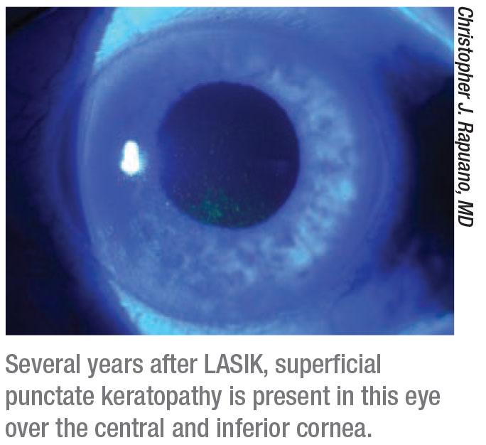 Dry Eye: A Practical Approach