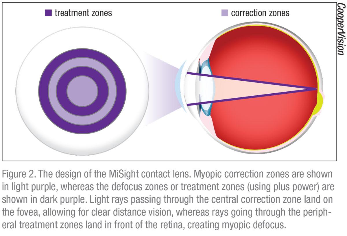 myopia a görcs miatt tanácsolja a látáshoz a legjobb vitamin komplexet