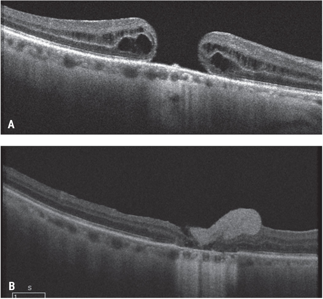 Figure 8. Pre-retinal human amniotic membrane for a chronic, large macular hole. A patient presented with a chronic macular hole of more than two years' duration after a prior retinal detachment repair and count fingers vision (A). He underwent vitrectomy, ILM peeling and pre-retinal placement of human amniotic membrane over the macular hole and gas tamponade. As the amniotic membrane dissolved (hyperreflective preretinal material), the hole closed and the visual acuity improved to 20/150 (B).