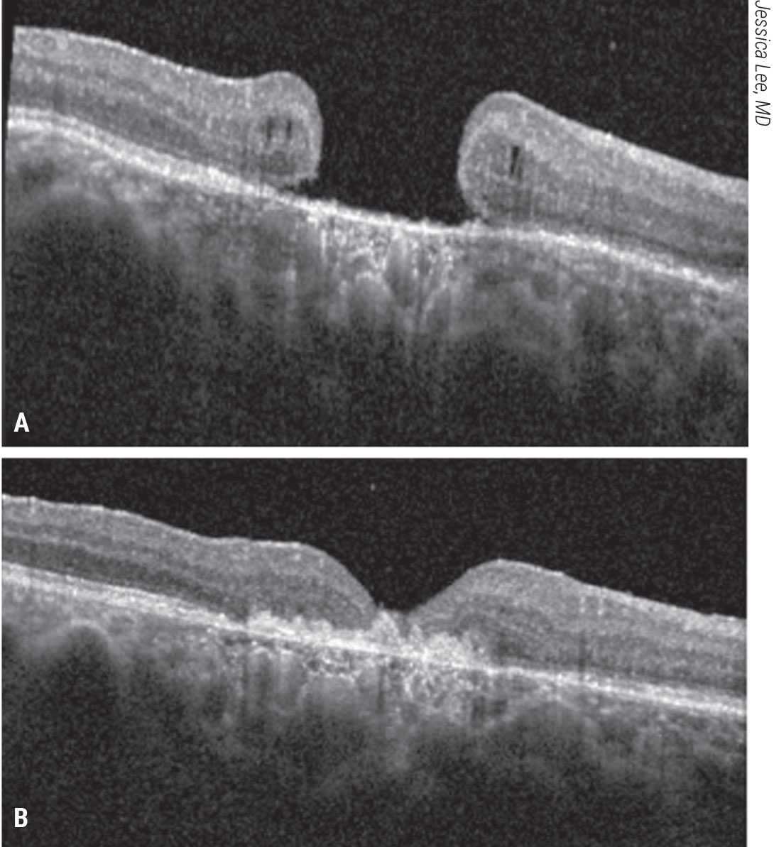 Figure 9. Subretinal human amniotic membrane for a refractory macular hole. A patient with count-fingers vision presented with a refractory macular hole after prior vitrectomy, ILM peeling and gas tamponade. A human amniotic membrane graft was placed in a subretinal position followed by gas tamponade. The patient's macular hole closed and visual acuity improved to 20/200 (B).