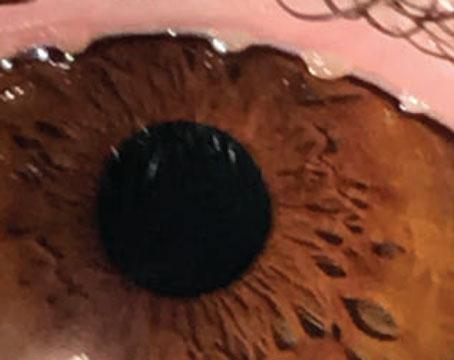 Diagnosing Ocular Surface Disease